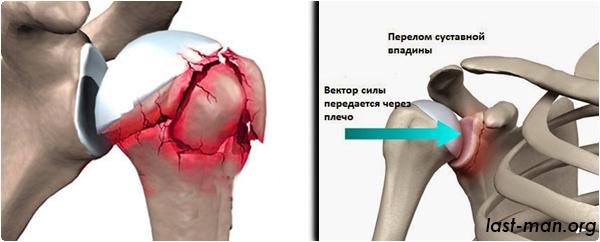 Перелом головки плечевой кости